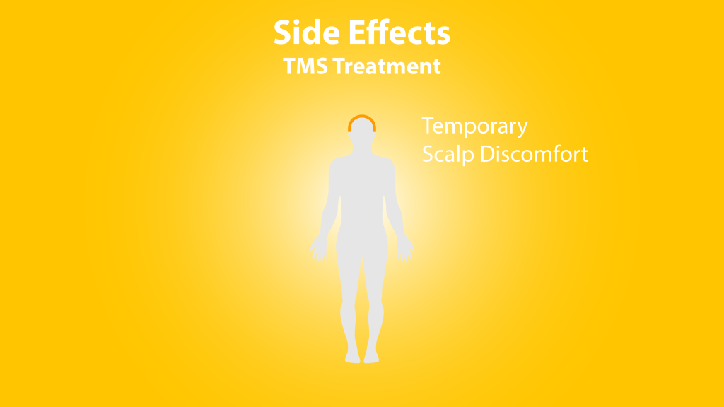 tms side effects: temporary scalp discomfort